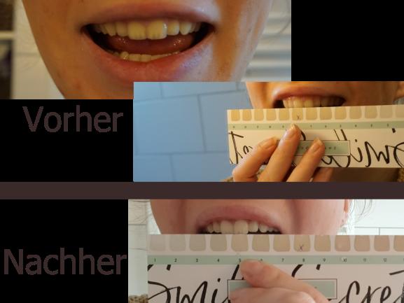 SmileSecret Bewertung Vorher Nachher